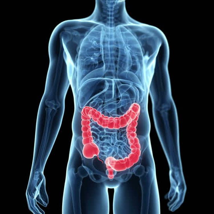 infiammazione-colon